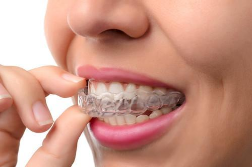 Woman using clear aligners | Dentist Calgary AB