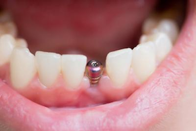 Close Up of Metal post for dental implant | Dentist Calgary AB