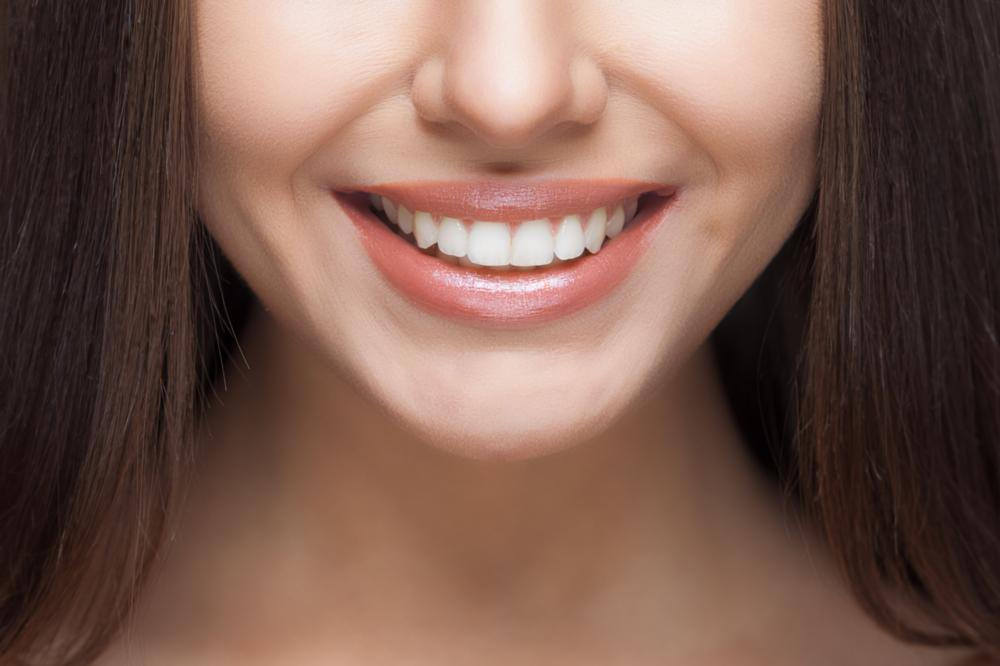 close up of woman's smile | Cosmetic Dentistry Calgary AB