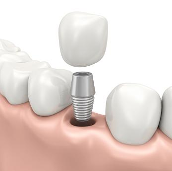 dental implant | South Calgary Dentist