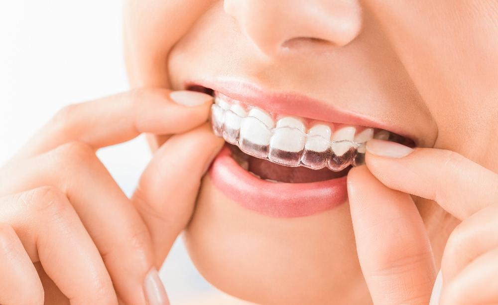 Person using Invisalign | Dentist Calgary AB